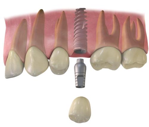 implanty 1 zab, Dentiz Lublin