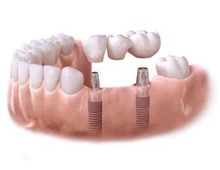 implanty most, Dentiz Lublin